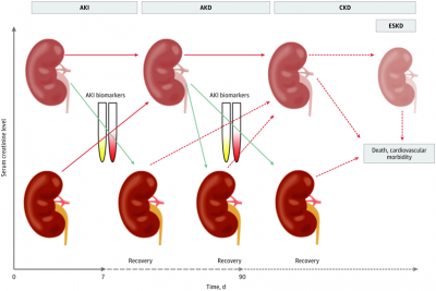 Recommendations on Acute Kidney Injury Biomarkers